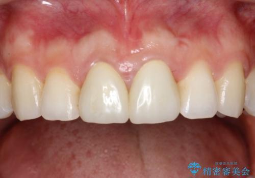前歯のセラミック治療 根管治療からやり直しの治療前