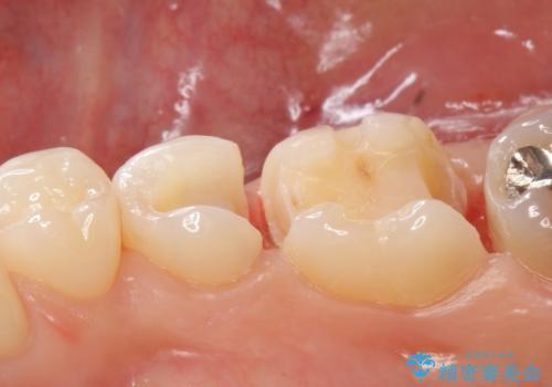 セラミックインレー PGA(ゴールド)インレー 虫歯治療の治療中