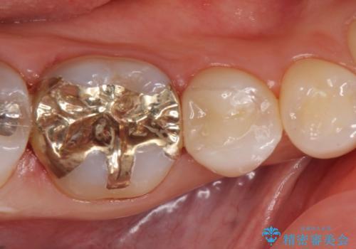 セラミックインレー PGA(ゴールド)インレー 虫歯治療の治療後