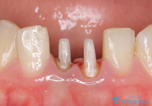 オールセラミッククラウン(エコノミー) 下顎前歯 根管治療後の補綴の治療中