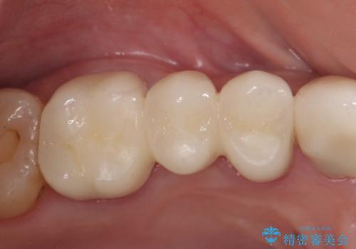 オールセラミッククラウン 抜歯した歯をブリッジでの治療後
