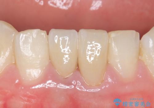 オールセラミッククラウン(エコノミー) 下顎前歯 根管治療後の補綴の治療後