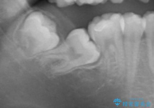 親知らず・埋伏歯の抜歯の症例 治療前