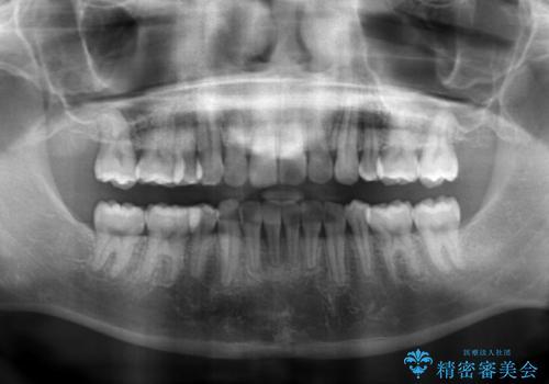 前歯のねじれ 下の歯のガタガタの治療後