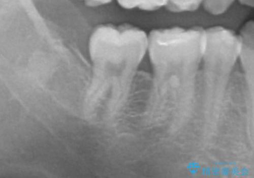 親知らず・埋伏歯の抜歯の症例 治療後