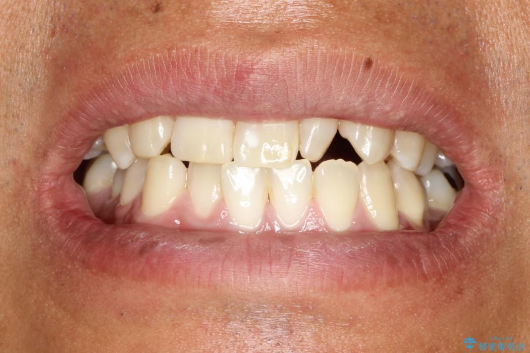 先天欠損の難症例 表のワイヤー矯正による治療の治療前(顔貌)