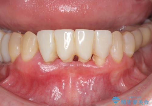 骨造成を伴う下顎前歯インプラントの治療前
