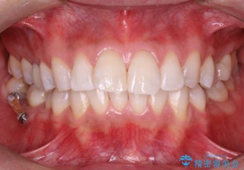 レーザーを用いたオフィスホワイト二ングで白い歯にの治療後
