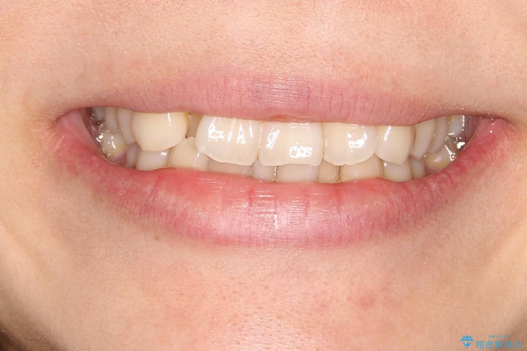 インビザラインによるクロスバイトの治療症例の治療前(顔貌)