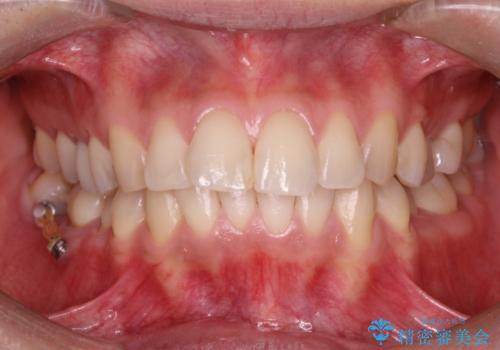 レーザーを用いたオフィスホワイト二ングで白い歯にの症例 治療前