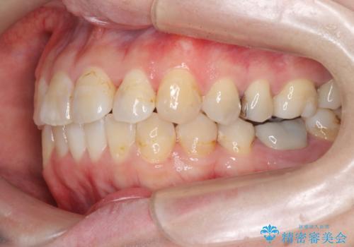 歯のガタガタをマウスピース矯正で治療の治療後