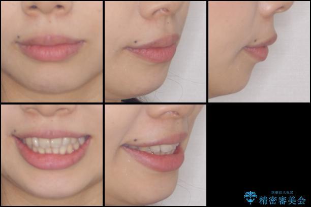 出産しながらでも綺麗な歯並びに インビザラインによる矯正治療の治療前(顔貌)