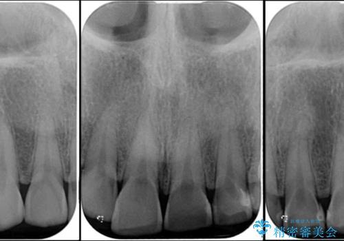 隙間の空いた前歯を治したい 部分矯正とオールセラミッククラウンの治療前