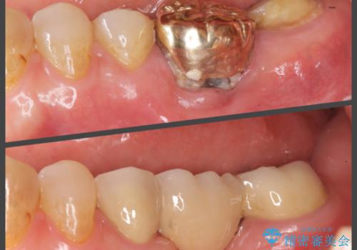 歯が割れた ブリッジによる咬合機能回復