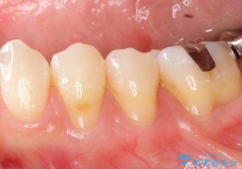 矯正治療後の歯肉退縮 歯肉移植による根面被覆の治療前