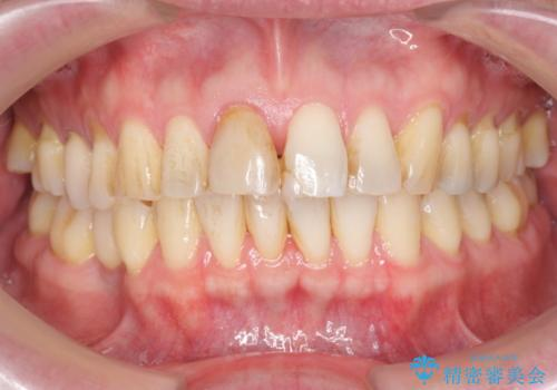 神経の死んだ前歯のレジン修復の劣化 ジルコニアクラウンによる審美回復の治療前