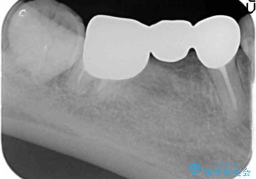 奥歯のブリッジを白く 矯正含めた総合治療で、歯周病、根の問題、一気に解決の治療前