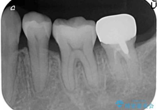 銀歯を白く セラミックインレーにの治療後