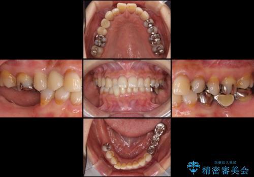 奥歯で咬めない インプラントによる咬合回復② 歯肉移植・補綴の治療前