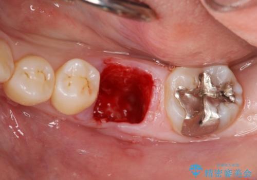 破折による欠損歯 ストローマン社製インプラントによる咬合回復の治療前