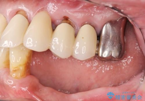 [重度の骨吸収] 顎骨の再建を伴うインプラント治療の治療前
