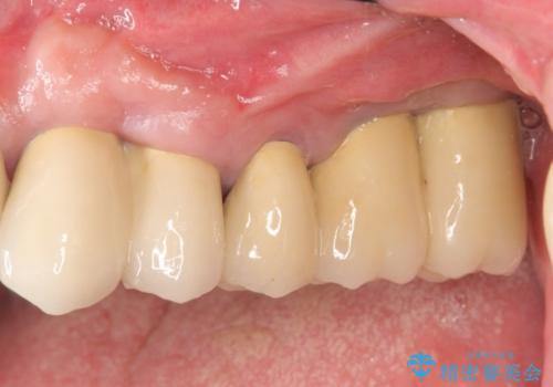 [重度の骨吸収] 顎骨の再建を伴う<span class=