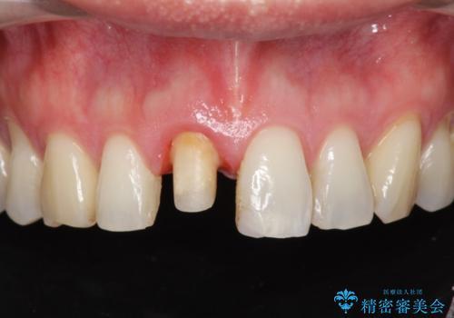 神経の死んだ前歯のレジン修復の劣化 ジルコニアクラウンによる審美回復の治療中