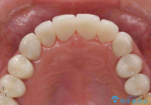 [酸蝕歯] オールセラミックジルコニアクラウン治療の治療後