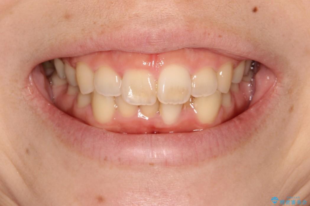 インビザラインinvisalignによる軽度ガタつきの歯列矯正治療の治療前(顔貌)
