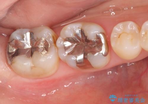 笑った時に見える銀歯を白くの治療前