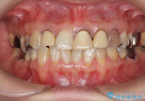 劣化した前歯の差し歯 オールセラミッククラウン審美治療の治療前