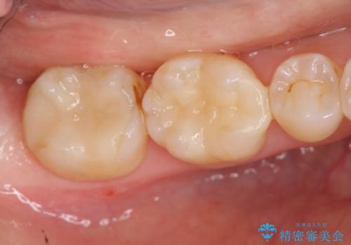 笑った時に見える銀歯を白くの治療後