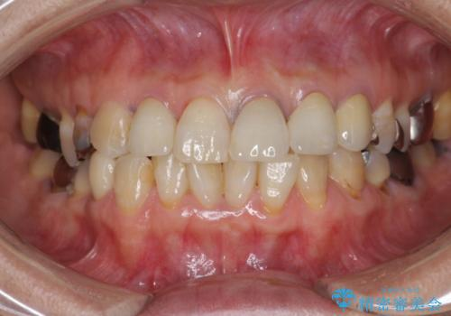劣化した前歯の差し歯 オールセラミッククラウン審美治療の治療後