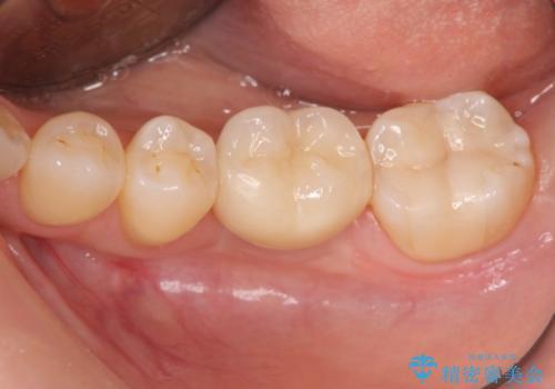 破折による欠損歯 ストローマン社製インプラントによる咬合回復の治療後