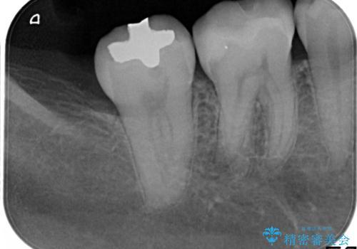 もう、むし歯になりたくない。精度の高いセラミックインレーの治療後