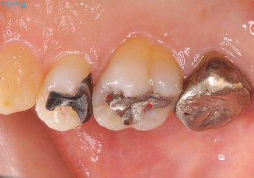 銀歯をセラミックで白くの治療前
