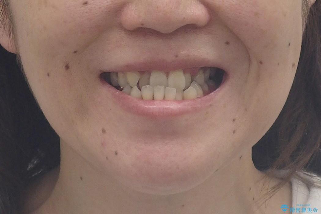 受け口 大人の矯正 セラミックで全体的に治療もの治療前(顔貌)