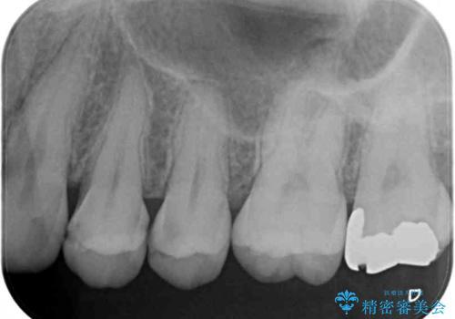 歯の内部が黒く変色し痛む 大きな虫歯のセラミックインレー治療の治療前