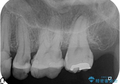歯肉の中の深い虫歯 外科処置による適正な虫歯治療の治療前