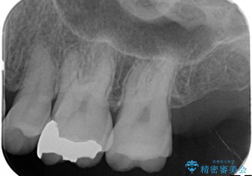 銀歯のやり直し 虫歯治療 セラミックインレーに変更の治療前
