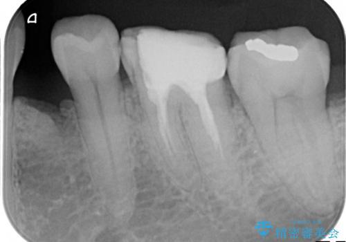 中途半端な継ぎ接ぎの歯を、クラウンでしっかりと処置するの治療前