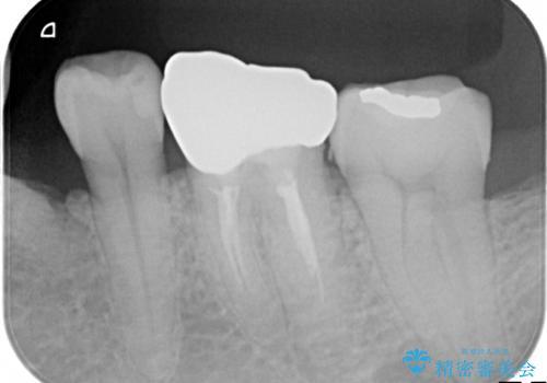 中途半端な継ぎ接ぎの歯を、クラウンでしっかりと処置するの治療後