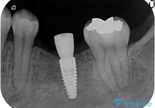 破折による欠損歯 ストローマン社製インプラントによる咬合回復の治療中