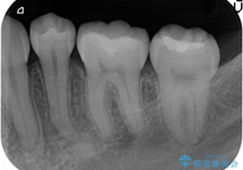銀歯を目立たなくする セラミック治療 の治療後