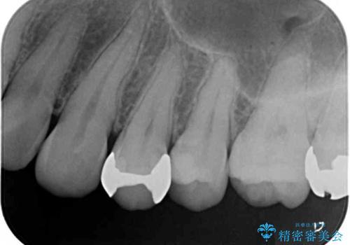 歯の内部が黒く変色し痛む 大きな虫歯のセラミックインレー治療の治療後