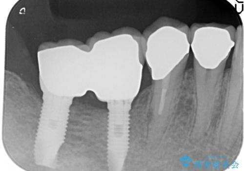 奥歯の喪失  骨造成を伴うインプラント咬合回復の治療後