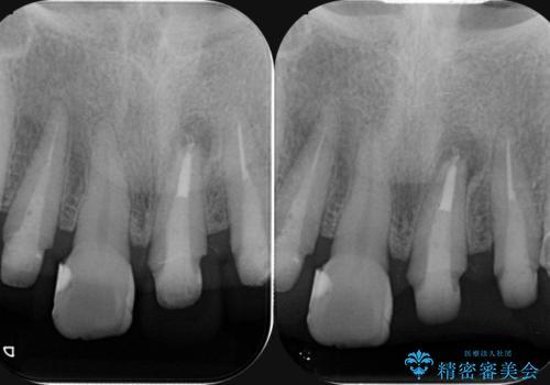 劣化した前歯の差し歯 オールセラミッククラウン審美治療の治療中