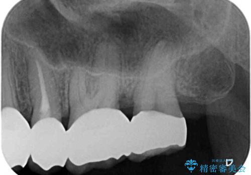 歯肉の中の深い虫歯 外科処置による適正な虫歯治療の治療後