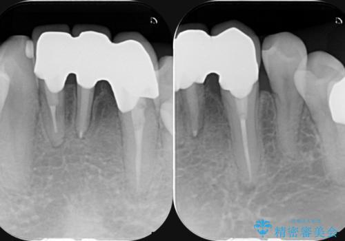 矯正治療を併用した前歯ブリッジの再作製の治療後