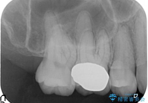 奥歯の歯の間の虫歯の治療 セラミッククラウンおよびセラミックインレーの治療後